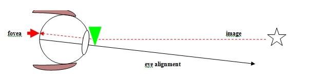 Diagram 4 - BVD - Visual description of Binocular Vision disorder